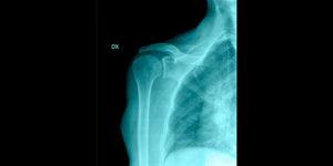 Artropatia da cuffia intervento chirurgico