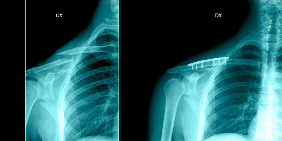 Frattura della Clavicola trattamento chirurgico