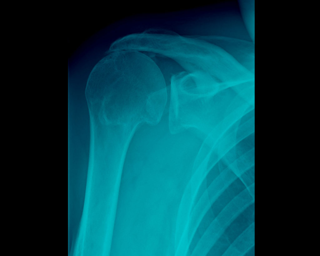 Lesione della cuffia dei rotatori