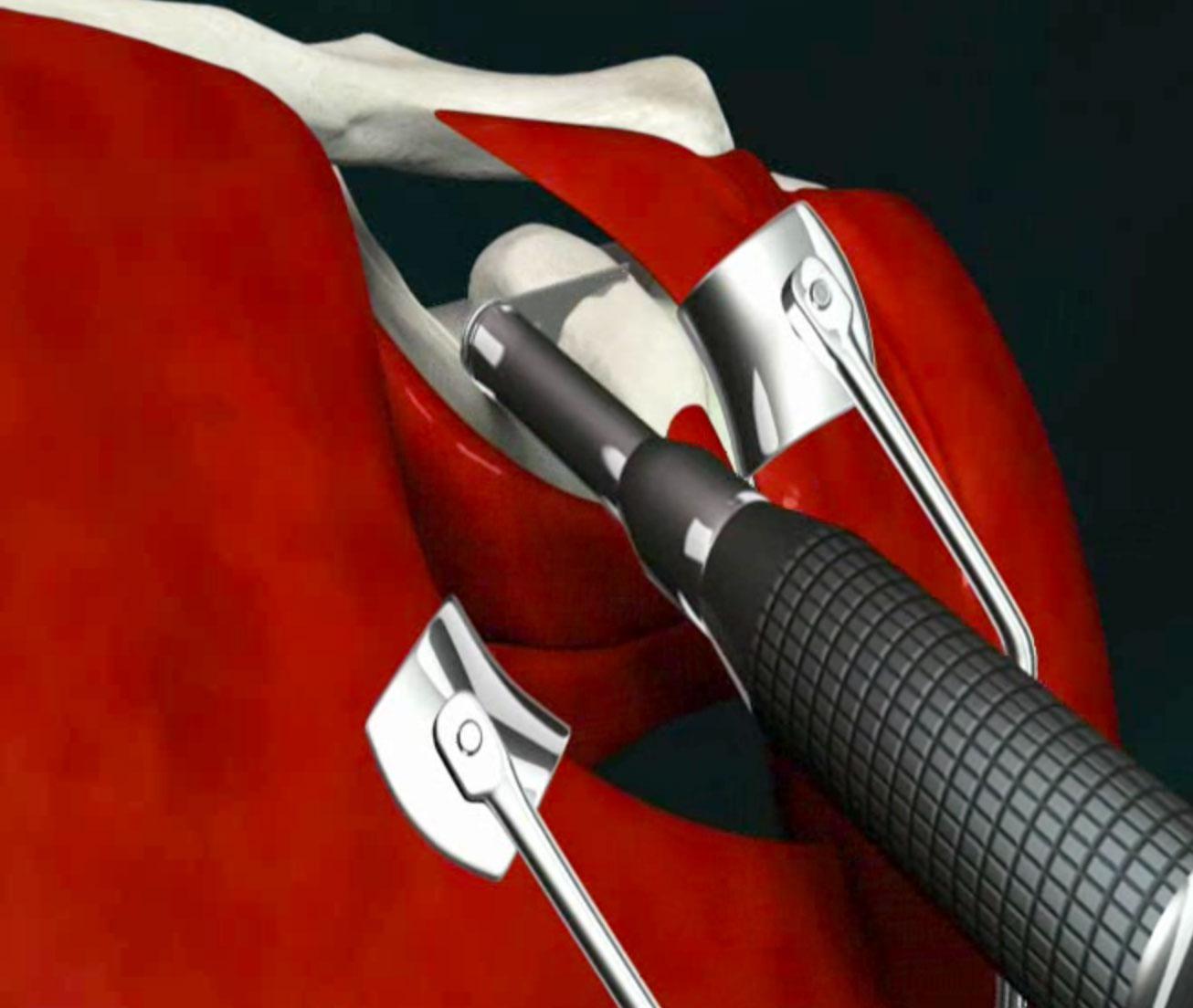 Intervento chirurigico nella lussazione della spalla