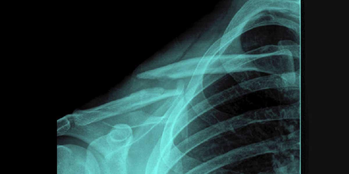 Frattura clavicola destra