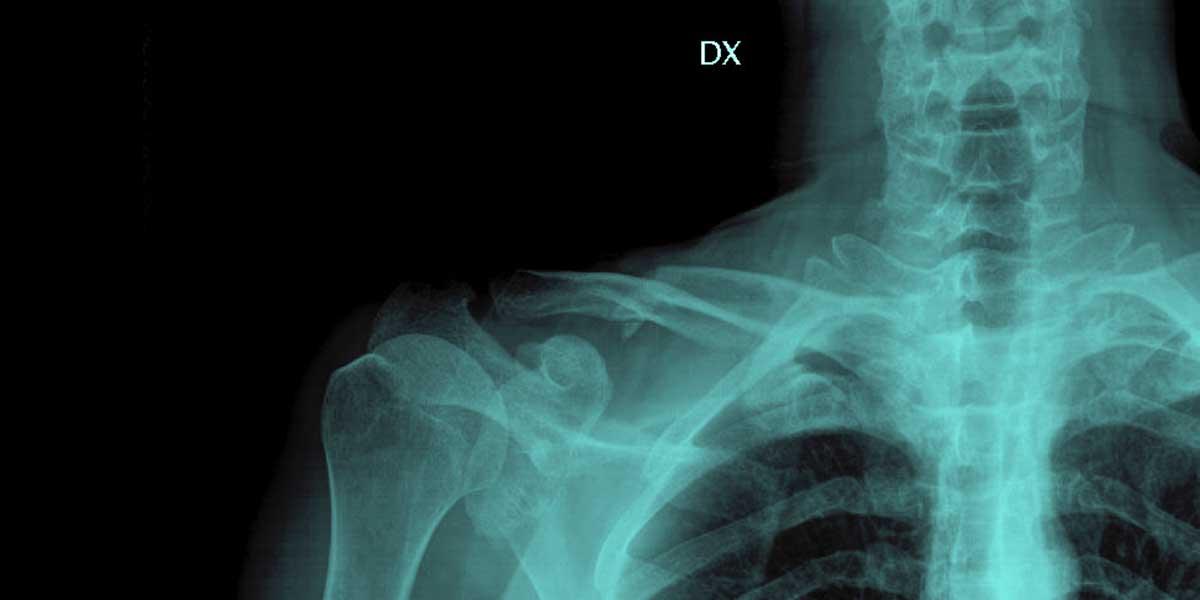 frattura scomposta di clavicola destra