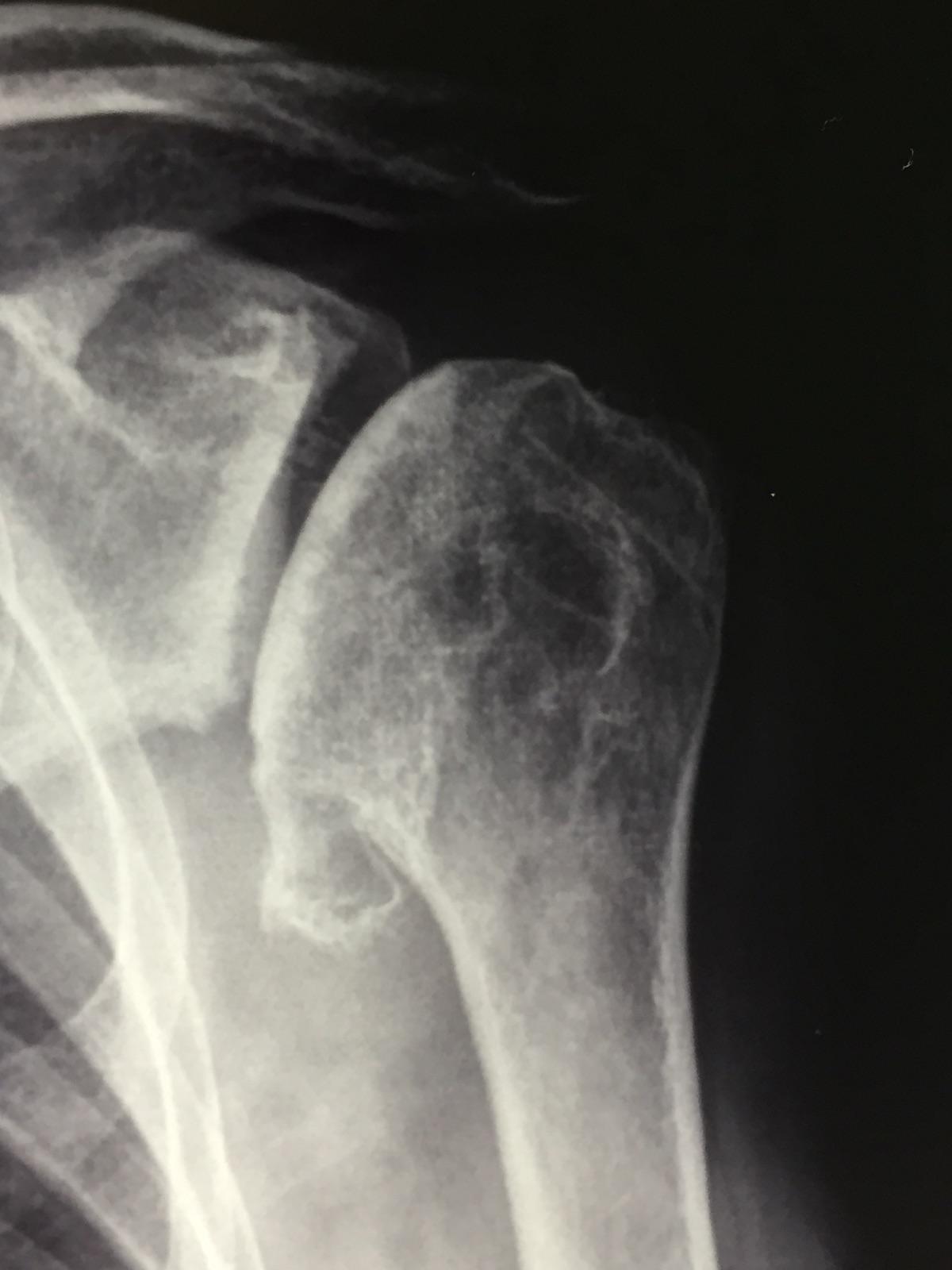 Artrosi della spalla, sintomi e cure